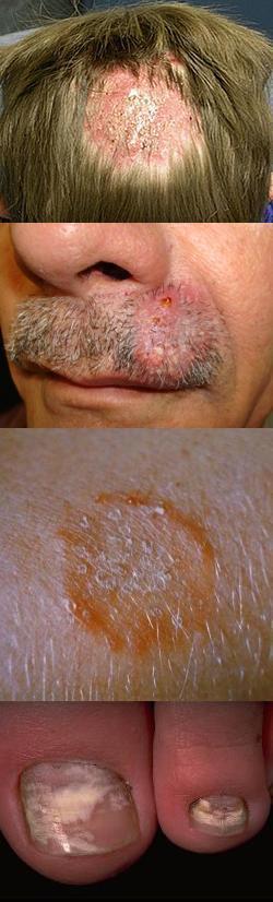 Стригущий лишай на голове: диагностика, лечение микроспории волосистой части головы человека, фото