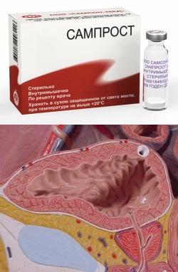 Что назначают при раке предстательной железы