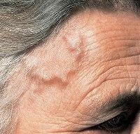 Геморрагический васкулит у взрослых последствия