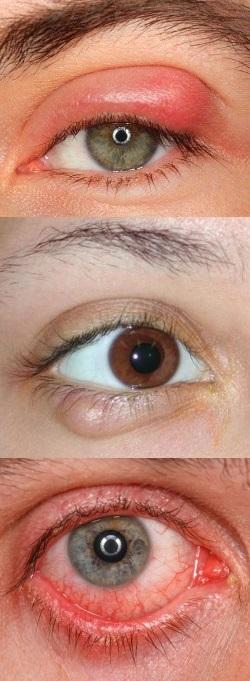 глаза на выкате болезнь