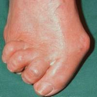Боль в мышцах ног - причины, характер, лечение