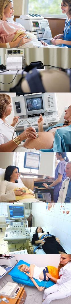 Что показывает КТГ (кардиотокография) плода при беременности