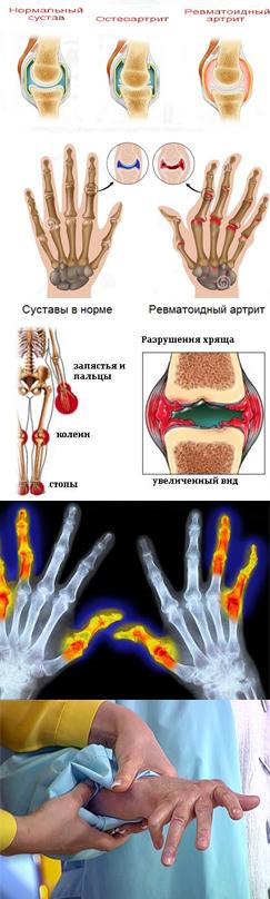 замена коленного сустава при ревматоидном полиартрите