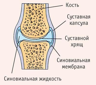 Синовит коленного сустава - симптомы и лечение