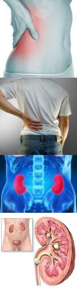 Пиелонефрит - симптомы, лечение, профилактика, причины
