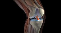 Рассмотреть рентген коленных суставов в прямой прекции взрослого лечение контрактур коленного сустава