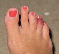 По каким причинам может болеть большой палец на ноге?