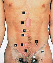 Защемление грыжи белой линии живота симптомы