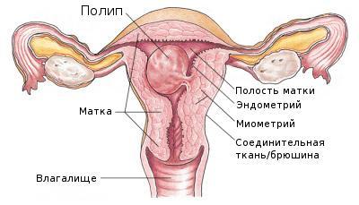 Из за чего происходит полипа она не опасна рпи сексе