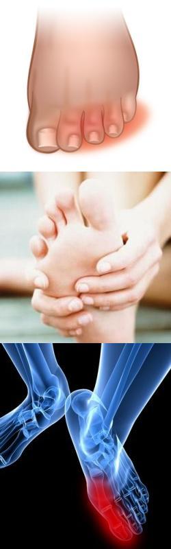 Народные методы лечения косточек на стопах