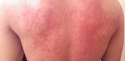 Крапивница: фото симптомы и лечение у взрослых