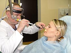 Лазерное лечение хронического вазомоторного ринита.