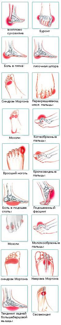 Боли в стопе – причины, симптомы, что делать, если болит стопа?