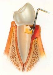 Стоматолог, конечно, тоже может помочь при пародонтозе, но если.