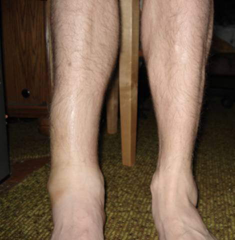Перелом голени - виды и степени тяжести, симптомы, лечение и ...