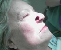 Фиброма и фиброматоз кожи: что это такое, как выглядит на голове и теле? Как лечить у ребенка и взрослого?