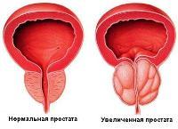 Простакор аналоги в таблетках - Простатит