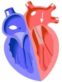 Боль за грудиной - причины, диагностика, лечение