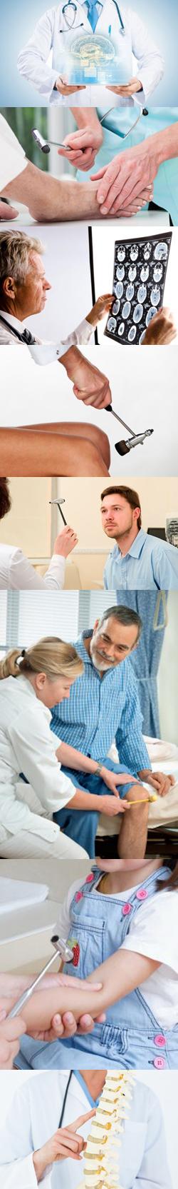 Какие заболевания лечит невролог у взрослых
