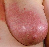 Боли в молочных железах при беременности