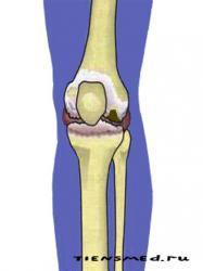 Артроз коленного сустава кто лечит