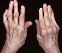 Ревматоидный артрит: лечится ли артрит навсегда