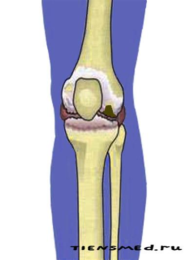 Продуктивное лечение артроза коленного сустава обертывание с воском для суставов