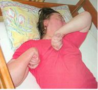 Атонический приступ эпилепсии у детей