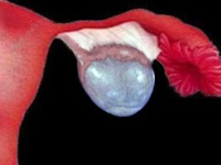 Фолликулярная киста яичника ФОТО и успешное лечение