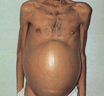 После химиотерапии метастазы в печени не уменьшаются