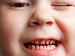 Почему скрипят зубами во сне: причины скрежета зубами во сне у взрослых и детей, лечение