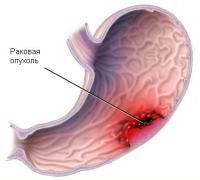 Болит желудок температура 37 после бонвивы очень болит голова
