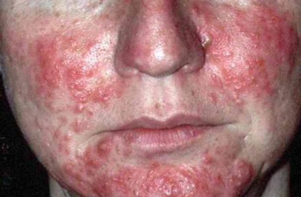 запах изо рта при заболевании печени