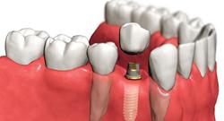 Особенности показания противопоказания стоимость имплантации зубов без разреза десны