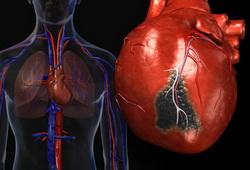 Как прогрессирует сердечная недостаточность при очаговом кардиосклерозе