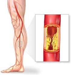 Атеросклероз суставов ног расходящаяся повязка на область коленного сустава