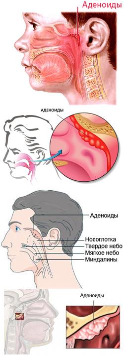 Аденоиды у детей клинические симптомы и лечение