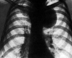 осложнения паратонзиллярного абсцесса