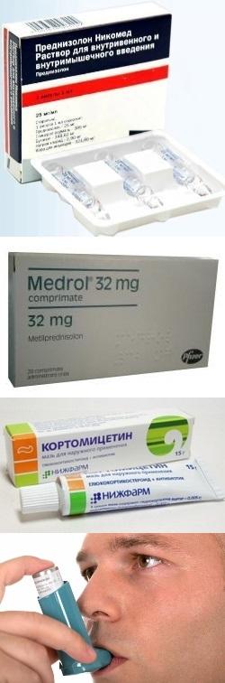 Кортикостероиды для лечения бесплодия
