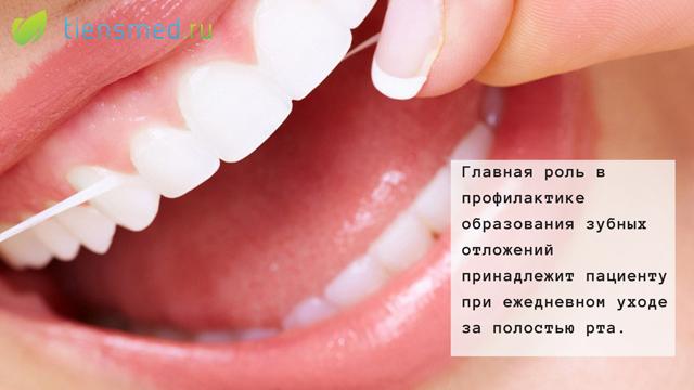 Зубной камень причины появления характерные симптомы и методы удаления