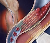 Сердечно сосудистой хирургии а.н.бакулева