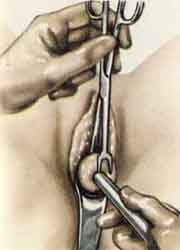 Кюретаж что это такое в гинекологии