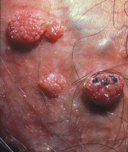 Вирусы папилломы человека 16 группа