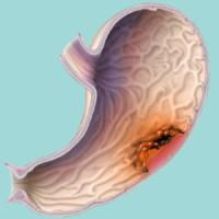 Рак эндометрия рак тела матки  симптомы болезни