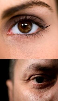 Гемералопия или куриная слепота наблюдается при нарушениях