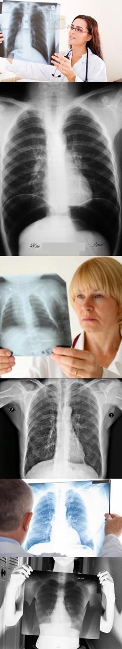 Рентгеноскопия органов грудной клетки