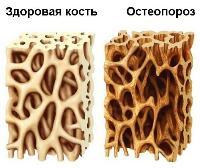 Болят ребра на спине с обеих сторон