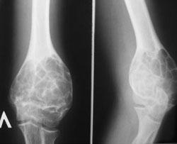 Рентген костей. Нормальная лучевая анатомия. Диагностика заболеваний костей с помощью рентгена