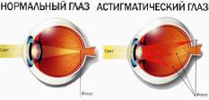 Операция при потере зрения