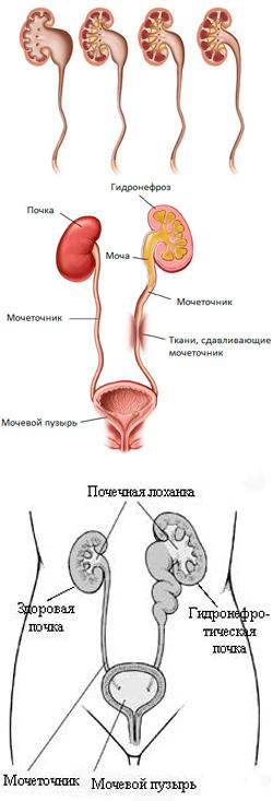 Мочегонные средства при гидронефрозе